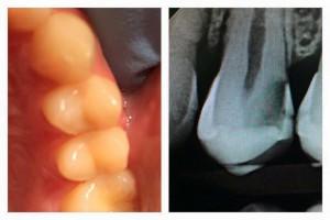 Röntgenfoto tandarts gaatje