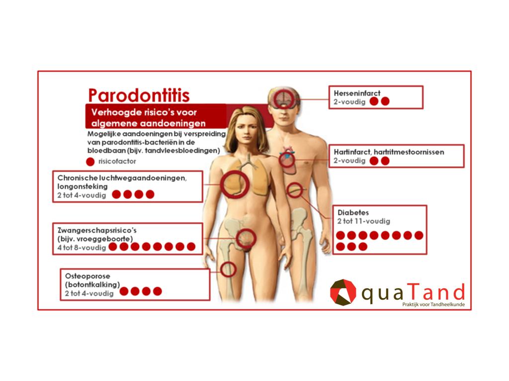 parodontitis ziekten lichaam